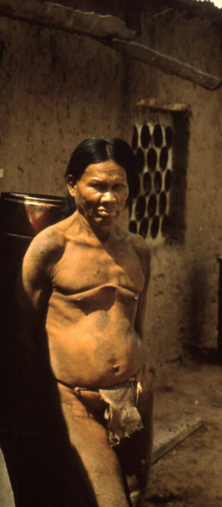 Ayoré man with puperty chest cuttings.